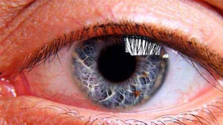 Retina+y%C4%B1rt%C4%B1klar%C4%B1