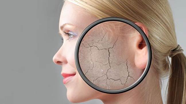 Kışın kuruyan cildiniz için bu tarifleri deneyin!