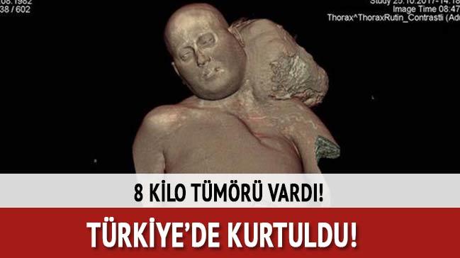 8 kilo tümöründen Türkiye'de kurtuldu