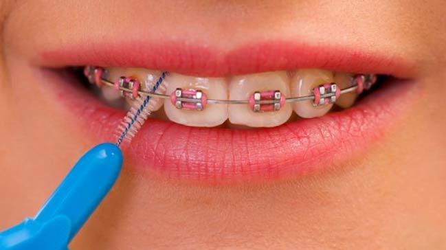 Diş teli temizliği nasıl yapılır?