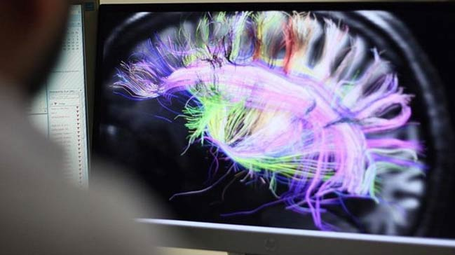 Beynin+elektrik+ba%C4%9Flant%C4%B1lar%C4%B1n%C4%B1n+haritas%C4%B1+%C3%A7%C4%B1kar%C4%B1ld%C4%B1
