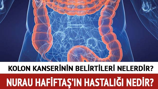 Nuray+Hafifta%C5%9F%E2%80%99%C4%B1n+hastal%C4%B1%C4%9F%C4%B1+Kolon+kanseri+nedir+Kolon+kanserinin+belirtileri+neler