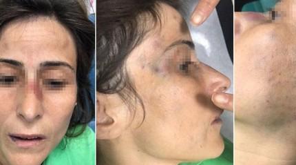 Eşinin, çocuklarının yanında dövüp kemiklerini kıran doktorun cezası belli oldu