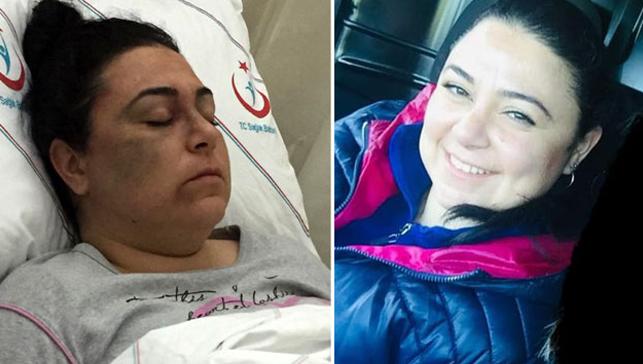 Şehir magandası, tanımadığı 3 kadını döverek hastanelik etti
